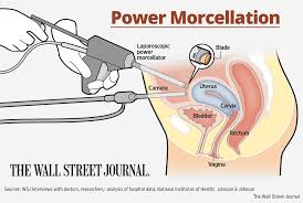 power-morcellator-settlement