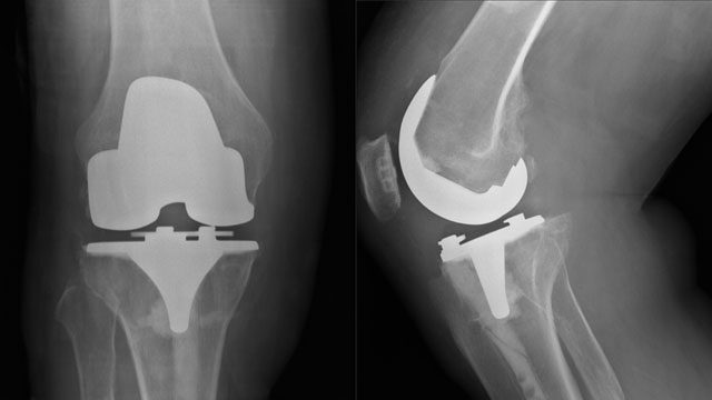 zimmer-knee-recall